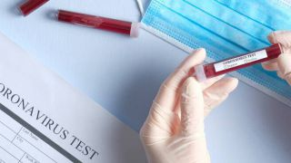 Coronavirus: esami di laboratorio